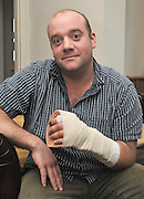 Feeling a bit saw! Builder has his hand sewn back on after horrific accident with circular power tool<br /> <br /> A builder who severed his hand with a saw had it saved thanks to the work of a former Italian professional footballer turned plastic surgeon.<br /> Harry Wones cut through the flesh, muscle, tendons and bones of his palm, leaving the hand hanging by skin next to the thumb.<br /> In shock, he was flown to Norfolk and Norwich University Hospital where consultant plastic surgeon Andrea Figus led a team in a complicated 10-hour operation to re-attach the hand.Mr Figus, 36, who played football with Italian Serie A side Cagliari, worked through the night and later declared the operation a success.<br /> <br /> Father-of-one Mr Wones, who was working with a circular saw when he was momentarily distracted, today praised the surgeon and his team.<br /> The 33-year-old said: 'They were not just doing their job they went above and beyond. Mr Figus was so positive - he was absolutely brilliant.<br /> 'It is amazing what they can do at the hospital.'<br /> <br /> Mr Wones was working on a house in Wells, north Norfolk, on February 4 when the accident happened.<br /> After the air ambulance flight to hospital, the surgery team took a vein from his foot to reconstruct the arteries in the palm of his hand and crucially restore the flow of blood to his fingers.<br /> Reliving the incident, Mr Wones, of Ellingham, near Bungay, Suffolk, said: 'I was working on a holiday home in Wells and was using a chop saw.<br /> 'It is a piece of equipment I use all the time. I just lost concentration and it went through my hand.<br /> 'I shouted to my colleague and he ran outside to the next door neighbour, who luckily was a retired doctor. My hand felt like it was on fire and I assumed it must be fairly bad.<br /> 'They call it a semi-amputation, it was hanging on by the thumb. The air ambulance came and landed on the high school playing field.<br /> ©Exclusivepix