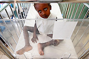 Five-year-old Finise Marcellus recuperates from cholera in a special isolation ward for patients with the disease complicated by other medical conditions at St. Damien Hospital. After four days of treatment, the child was sent home with her family. David Albers/Staff