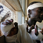 May 30, 2003 - Kabagame Lokana, 25, recovers in the medical clinic in Bunia, Democratic Republic of Congo after he was slashed across the face and his hands mutilated during fighting between rival ethnic groups the Hema and Lendu. Photo by Evelyn Hockstein