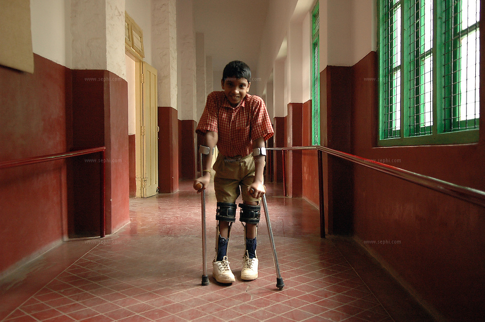 Sandeep (12) has been at APD School for nine years and has many friends and is very happy to be there. He suffers from Spin Bifida from birth