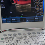 A carotid ultrasound is performed to test for narrowed carotid arteries, which increase the risk of stroke. Carotid arteries are usually narrowed by a buildup of plaque &mdash; made up of fat, cholesterol, calcium and other substances that circulate in the bloodstream.<br /> <br /> The Carotid ultrasound was performed in the doctors office.<br /> <br /> A carotid duplex scan is a simple and painless test that combines two types of ultrasound to look for blockages in your carotid arteries. An ultrasound is a type of scan that uses sound waves to produce a picture of the inside of your body. Your carotid arteries are located along both sides of your neck. Blocked carotid arteries are a major risk factor for stroke.<br /> <br /> The two types of ultrasound used in a carotid duplex scan are conventional ultrasound and Doppler ultrasound. Conventional, or B-mode, ultrasound uses sound waves that bounce off blood vessels to provide a picture of the structure of your blood vessel. Doppler ultrasound uses sound waves that track moving objects. This allows your doctor to see how your blood is moving through your blood vessels.