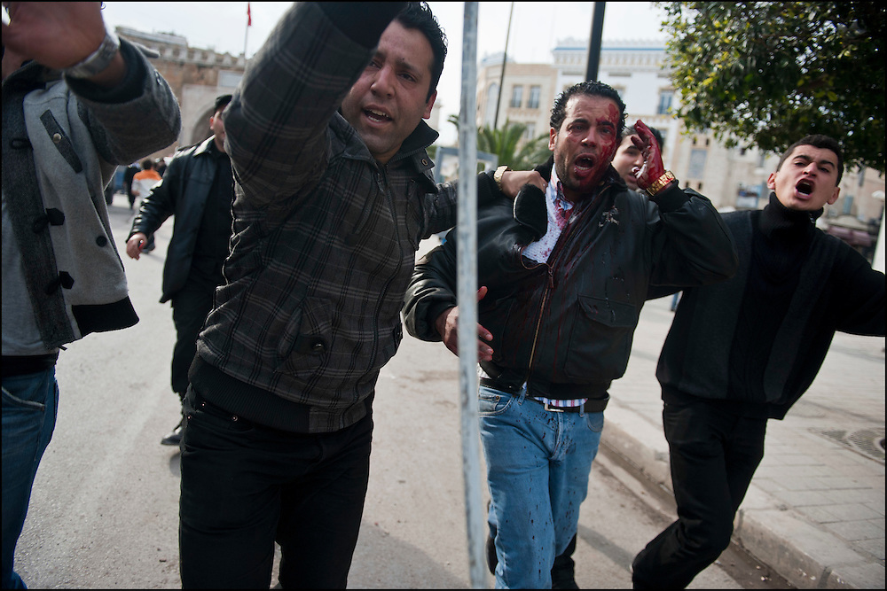 Un habitant faisant équipe avec la police est blessé au visage lors des affrontements avec les manifestants à proximité de la Medina. // A la suite de nombreux pillages et saccages commis dans le centre ville de Tunis la Police accompagnée des habitants organisés en comité de quartiers chassent les pilleurs, Tunis dimanche 27 février 2011. © Benjamin Girette/IP3 press