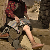 A tibetan woman show how her legs and foots has been deformed since she  was affected by the Kashin-Beck Disease. Narme, Tibet, China. April 14, 2007. Photo: Bernardo De Niz