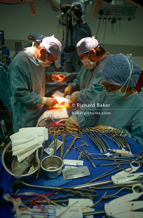 Surgeons performs open heart surgery during a procedure at the private Health Care International hospital in 1994, Glasgow, Scotland. Forceps and scissors and other various implements necessary for efficient medical practice as the masked and gowned doctors, consultants and assisting nurses concentrate on the work in hand, the saving of a human life.