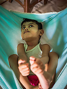 02 JUNE 2015 - KULAI, JOHORE, MALAYSIA: MOHAMMAD SHIDE, 6 year old Rohingya refugee, in his crib. The child was born healthy but developed symptoms similar to polio before they came to Malaysia from Myanmar. Now his mother can't afford a proper medical diagnosis and his condition is worsening. He is blind and losing control of his muscular system. His mother doesn't know what is wrong with him but earns less than $6 US per day selling used books on the street and can't afford medical care. The UN says the Rohingya, a Muslim minority in western Myanmar, are the most persecuted ethnic minority in the world. The government of Myanmar insists the Rohingya are illegal immigrants from Bangladesh and has refused to grant them citizenship. Most of the Rohingya in Myanmar have been confined to Internal Displaced Persons camp in Rakhine state, bordering Bangladesh. Thousands of Rohingya have fled Myanmar and settled in Malaysia. Most fled on small fishing trawlers. There are about 1,500 Rohingya in the town of Kulai, in the Malaysian state of Johore. Only about 500 of them have been granted official refugee status by the UN High Commissioner for Refugees. The rest live under the radar, relying on gifts from their community and taking menial jobs to make ends meet. They face harassment from Malaysian police who, the Rohingya say, extort bribes from them.     PHOTO BY JACK KURTZ