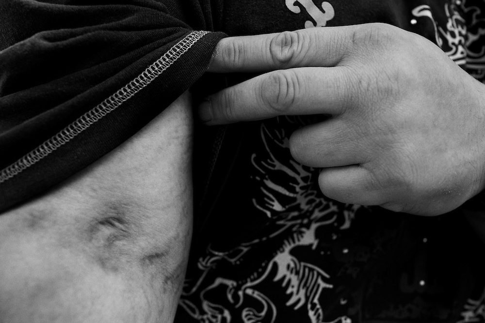 A former heroin user turned DEA informant displays the scars left by his addiction in Columbus, Ohio on Thursday, April 9, 2009. .