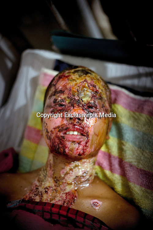 Narayanganj, Bangladesh - <br /> <br /> Acid Attack<br /> <br /> Acid throwing, also called an acid attack or vitriolage, is a form of violent assault. It is defined as the act of throwing acid onto the body of a person &quot;with the intention to disfigure, maim, torture, or kill.&sbquo;&Auml;&ugrave; Perpetrators of these attacks throw acid at their victims, usually at their faces, burning them, and damaging skin tissue, often exposing and sometimes dissolving the bones. The long term consequences of these attacks include blindness and permanent scarring of the face and body, along with far-reaching social, psychological, and economic difficulties. These attacks are most common in Cambodia, Afghanistan, India, Bangladesh, Pakistan. Globally, at least 1500 people in 20 countries are attacked in this way yearly, 80% of whom are female and somewhere between 40% and 70% under 18 years of age.<br /> <br /> Acid violence is a particularly vicious and damaging form of assualt in Bangladesh where acid is thrown in people&sbquo; faces. The overwhelming majority of the victims are women, and many of them are below 18 years of age. The victims are attacked for many reasons. In some cases it is because a young girl or women has spurned the sexual advances of a male or either she or her parents have rejected a proposal of marriage. Recently, however, there have been acid attacks on children, older women and also men. These attacks are often the result of family and land dispute, dowry demands or a desire for revenge.<br /> <br /> But the scars left by acid are not just skin deep. In addition to the inevitable psychological trauma, some survivors also face social isolation and ostracism that further damage their self-esteem and seriously undermine their professional and personal futures. Women who have survived acid attacks have great difficulty in finding work and, if unmarried (as many victims tend to be), have very little chance of ever getting married. In a country like Bangladesh this has serious social and economic consequences.<br /> <br /> Nitric or s