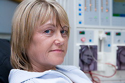 Woman undergoing dialysis on the Nottingham City Hospital Renal Unit,