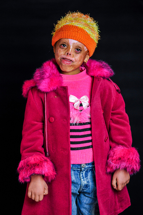 Seja Khierallah Ahmed, 6 years old, is from Mosul. While sleeping in her room one night a large explosion took place outside her home, damaging the house and causing a heater to fall on her head, severely burning her face. <br /> Amman, Jordan. 04/12/2011.