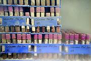 Nederland, Nijmegen, 10-9-2008Buisjes met monsters van genetisch en epidemiologisch materiaal van kinderen met aangeboren afwijkingen staan in een vriezer van het umc-radboud. Doel is om de genetische component van de afwijking te achterhalen. Hierdoor kunnen in de toekomst adviezen of behandelmethodes ontwikkeld worden. Tubes with samples of genetic and epidemiological material of children with congenital abnormalities found in a freezer of the UMC-Radboud. The aim is to find out the genetic component of the derogation.This may lead in the future to better advice or treatment methods. Foto: Flip Franssen