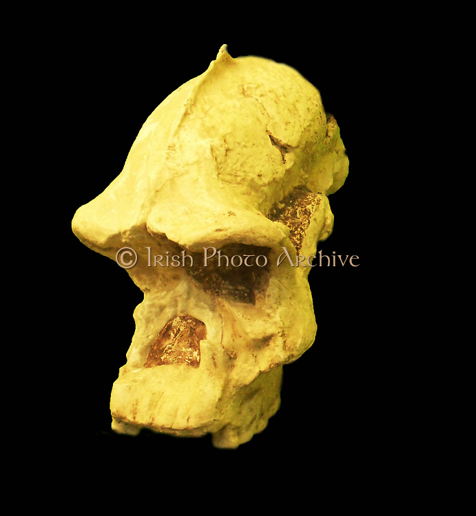 The robust australopithecines