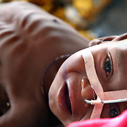 August 4, 2005 - A severly malnourished child is fed through a nasal feeding tube in the intensive care unit at a Doctors Without Borders feeding center in Maradi, Niger. Photo by Evelyn Hockstein/Polaris