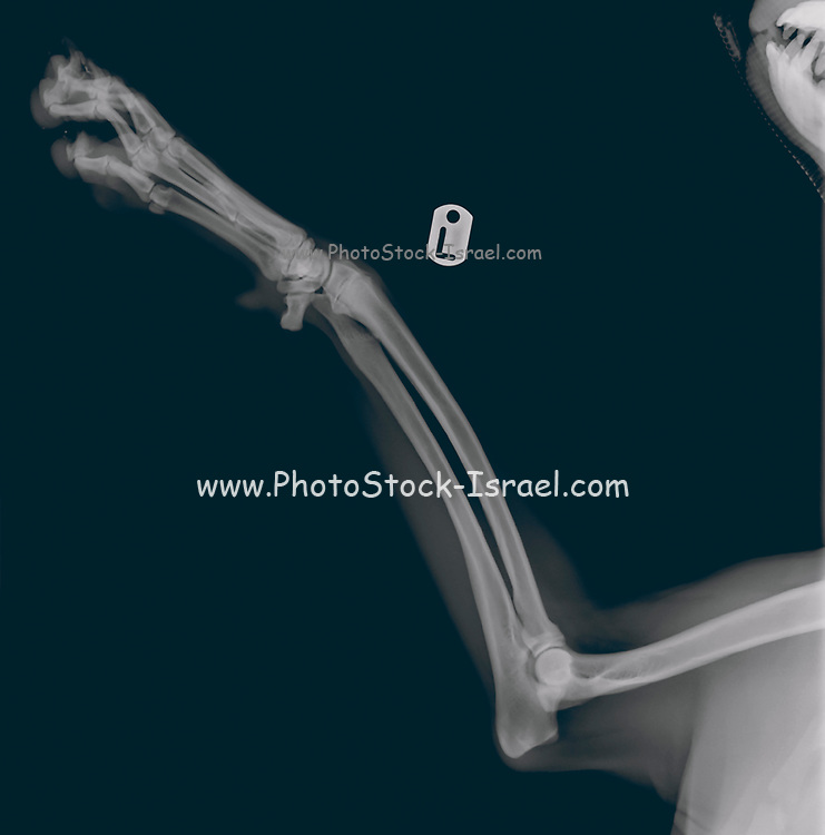 X-ray of a dog's front left leg at a veterinary surgery