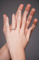 Young couple with hands raised together showing woman's engagement ring close up on hands