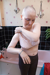 Woman who has had a mastectomy; the removal of a breast in response to breast cancer; and also hair loss as a result of chemotherapy treatment; getting dressed and putting on a postmastectomy; or prosthesis; bra in her bathroom,