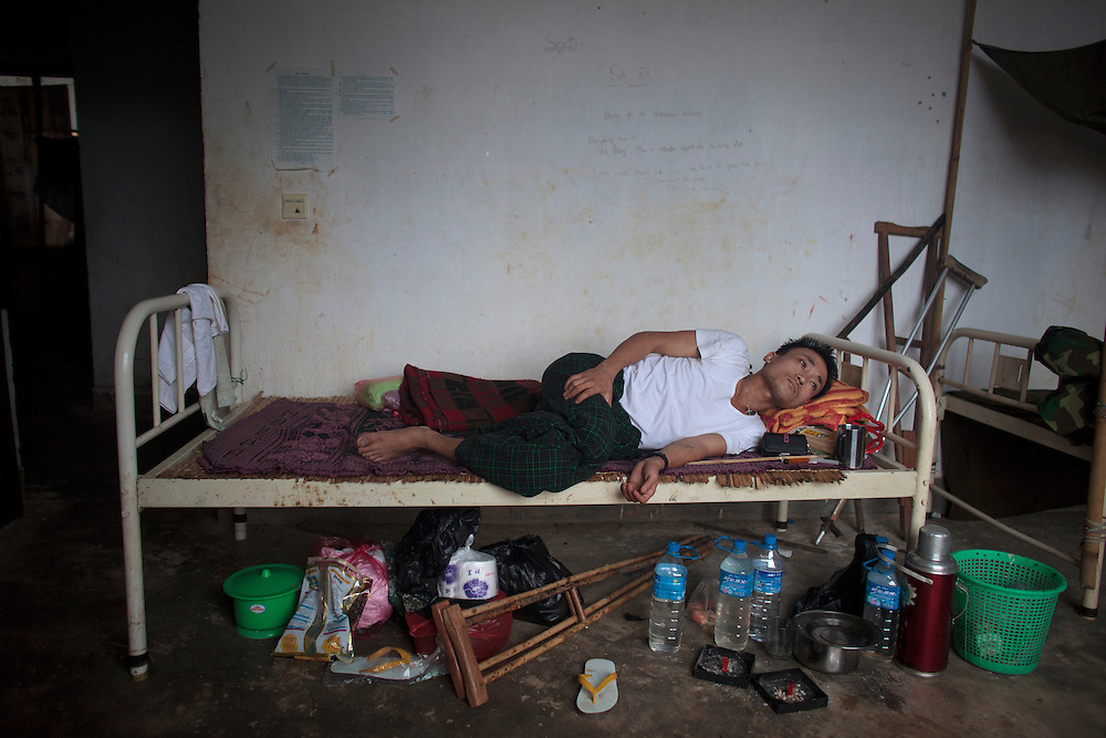 Kachin's militia member Zadai Lalawng, from Waimaw village, 25, rest in his bed in the Military General Hospital in Laiza village close to the China border, Myanmar on July 26, 2012.  He was injured by a landmine in June, 26, 2012 loosing part of his right leg on top of knee.