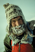 Climber Colin Monteath with frost nipped white patch on nose, Royal Society Range, Transantarctic mountains, Antarctica.