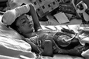 This mission to save Saleh brought him to Children's Hospital Oakland, where doctors who had read about his plight on the internet agreed to repair his wounds. The explosion had ripped open Saleh's abdomen, torn off his right hand and most fingers on his left, and blown out his left eye.