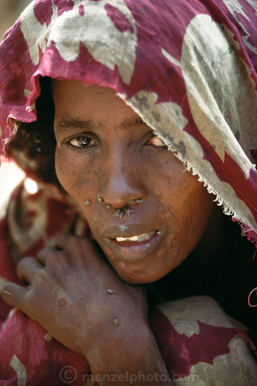 A woman at a refugee camp near Merca, 100 km. south of Mogadishu, the war-torn capital of Somalia. March 1992.