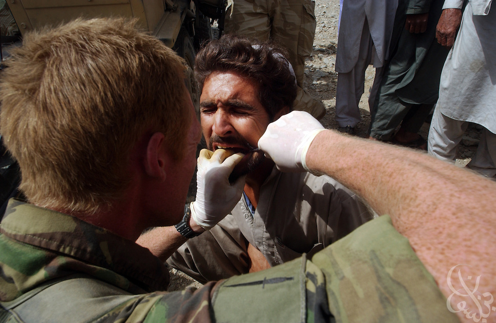 A British Royal Marine Commando dentist pulls the tooth of an Afghan man during a joint US-UK June 18, 2002 medical mission at a remote village in southeastern Afghanistan.