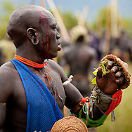One of the main Surma / Suri customs is stick fighting. If a fighter gets hurt he will not be granted any compensation. If he gets killed, which happens from time to time, his family must get a compensation. Usually 20 cows or a girl will do. No one shows his pain on the contrary they expose the their bleeding wounds.