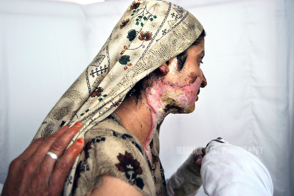 Ishraht Abullah sits upright in her hospital bed showing the burns inflicted to over 30% of her body after her husband threw sulphuric acid over her during a domestic dispute, February 8, 2005, Lahore, Pakistan. Due to the families lack of money, she has not been able to have her bandages changed after five days in hospital and is frequently visited by her husband and mother-in-law who repeatedly berate her and intimidate her into not pressing charges. Acid attacks have become all too frequent in South Asia with thousands of women are killed or scarred for life in cowardly attacks mostly instigated by unrequited love, marriage rejection, domestic disputes or financial debt. Pakistan has one of the world's highest domestic abuse rates with 70-90% of women suffering from some form of domestic violence. (Photo by Warrick Page)