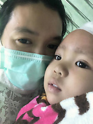 The girl who could come back from the dead: Toddler who died from a brain tumour is FROZEN by parents who hope she can one day be revived by medical advances<br /> <br /> A two-year-old girl who died from a brain tumour has been frozen - in the hope she will one day be revived by advances in science.<br /> Matheryn Naovaratpong, from Thailand, is thought to be the youngest person ever cryogenically preserved. <br /> The toddler was diagnosed with an aggressive form of cancer last April after she failed to wake up one morning, Motherboard's Brian Merchant reports<br /> After being admitted to a Bangkok hospital, tests revealed she had a 11cm tumour in the left side of her brain. <br /> <br /> Doctors diagnosed her with ependymoblastoma, a rare form of brain cancer that afflicts the very young.<br /> The outlook was bleak from the start - the disease has a five-year survival rate of 30 per cent.<br /> To make matters worse, Matheryn - known to her family as Einz - had fallen into a coma. <br /> After a months of intensive treatment, including 12 rounds of brain surgery, 20 chemotherapy treatments, and 20 radiation therapy sessions, it became clear there was little more doctors could do.<br /> She died on January 8th this year after her parents switched off her life support machine.<br /> By the time she passed away, she had lost 80 per cent of the left side of her brain - essentially paralysing the right side of her body. <br /> <br /> But determined for some good to come from her death, her family have had her body cryogenically preserved - by one of the biggest  providers of this service in the world.<br /> Matheryn is currently at the Arizona-based Alcor, her brain and body frozen separately at 196C.<br /> Her family's main - although many would argue, far fetched - hope is that one day, science will have progressed enough to restore life to her.<br /> Alternatively, her parents want the cells from her brain and other parts of her body to be saved, so the disease that killed her can be studied in the future.<br /> Aside from the huge number of 'what ifs', there is the co