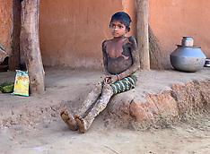 Rare genetic disorder turns 10-year-old tribal girl's skin into tree bark - 17 Jan 2020