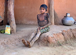 """EXCLUSIVE: A 10-year-old girl suffering from a rare skin disorder is gradually turning into a stone. Scutes shaped as barks -- caused due to mutation of genes -- have spread all over her body. Rajeshwari, hailing from a tribal area in Dantewada district of north Indian state of Chhattisgarh suffers from a case of ichthyosis that causes reddening, scaling and severe blistering of the skin. The incurable disease affects the process of skin regeneration in the human body, making it hard and flaky. Visuals show a heart-wrenching sight of Rajeshwari sitting under a thatched hut with blisters almost covering her whole body. Though the disease doesn't pose any risk to her life, it has made a life 'a living hell'. The disease hinders her daily life, making even simple activities such as walking and sitting very painful. According to reports, the rare genetic condition affects very few people and till now only two dozen cases have been reported in the world. The rarity of the case makes research difficult and the medicine to control the incurable disease has severe side effects. For people residing in the Naxal infested area, availing simple health care is already a mean feat and Rajeshwari's condition requires her to travel to a big city which is difficult for the time being. when doctors were shown the patient's case file, few of them came forward to express their opinions and diagnosis. Speaking about her condition, Dr.Satyaki Ganguly, Associate Professor at All India Institute of Medical Sciences(AIIMS), Raipur, said """" The medical term for this genetic disorder is Ichthyosis Psoriasis and due to very few cases in India, there has not been any major breakthrough in terms of research. Currently, science has no cure for this ailment."""" Another dermatologist has another take on Rajeshwari's case, Dr.Yash Upender from Dantewada Hospital believes that the girl suffers from Epidermolytic Ichthyosis which is not a life threatening disease but is still uncurable. Medication"""