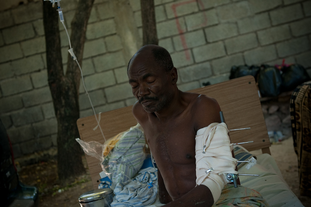 1/15/10 12:28:44 PM -- Port-Au-Prince, Haiti. -- Daily coverage of the aftermath of the 7.0 earthquake in Haiti -- A patient waits outside the Community Hospital in Port au Prince, Haiti Thursday, Jan. 21, 2010. More than one week after a 7.0 magnitude earthquake patients are still pouring in to get medical treatment. (Photo by William B. Plowman ©)