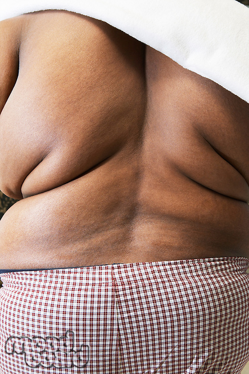 Overweight man with bare back rear view