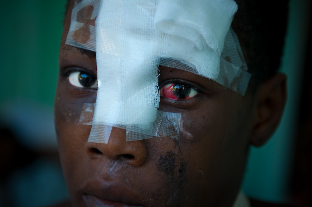 1/15/10 12:28:44 PM -- Port-Au-Prince, Haiti. -- Daily coverage of the aftermath of the 7.0 earthquake in Haiti -- A young woman sits, injured and bandaged, outside the Community Hospital in Port au Prince, Haiti Thursday, Jan. 21, 2010. (Photo by William B. Plowman ©)
