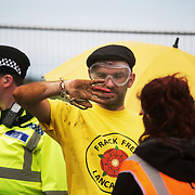 13 local activists locked themselves in specially made arm tubes to block the entrance to Quadrilla's drill site in New Preston Road, July 03 2017, Lancashire, United Kingdom. Dan Huxley-Blyth hurt in the process of being cut loose.  The 13 activists included 3 councillors; Julie Brickles, Miranda Cox and Gina Dowding and Nick Danby, Martin Porter, Jeanette Porter,  Michelle Martin, Louise Robinson,<br /> Alana McCullough, Nick Sheldrick, Cath Robinson, Barbara Cookson, Dan Huxley-Blyth. The blockade is a repsonse to the emmidiate drilling for shale gas, fracking, by the fracking company Quadrilla. Lancashire voted against permitting fracking but was over ruled by the conservative central Government. All the activists have been active in the struggle against fracking for years but this is their first direct action of peacefull protesting. Fracking is a highly contested way of extracting gas, it is risky to extract and damaging to the environment and is banned in parts of Europe . Lancashire has in the past experienced earth quakes blamed on fracking.