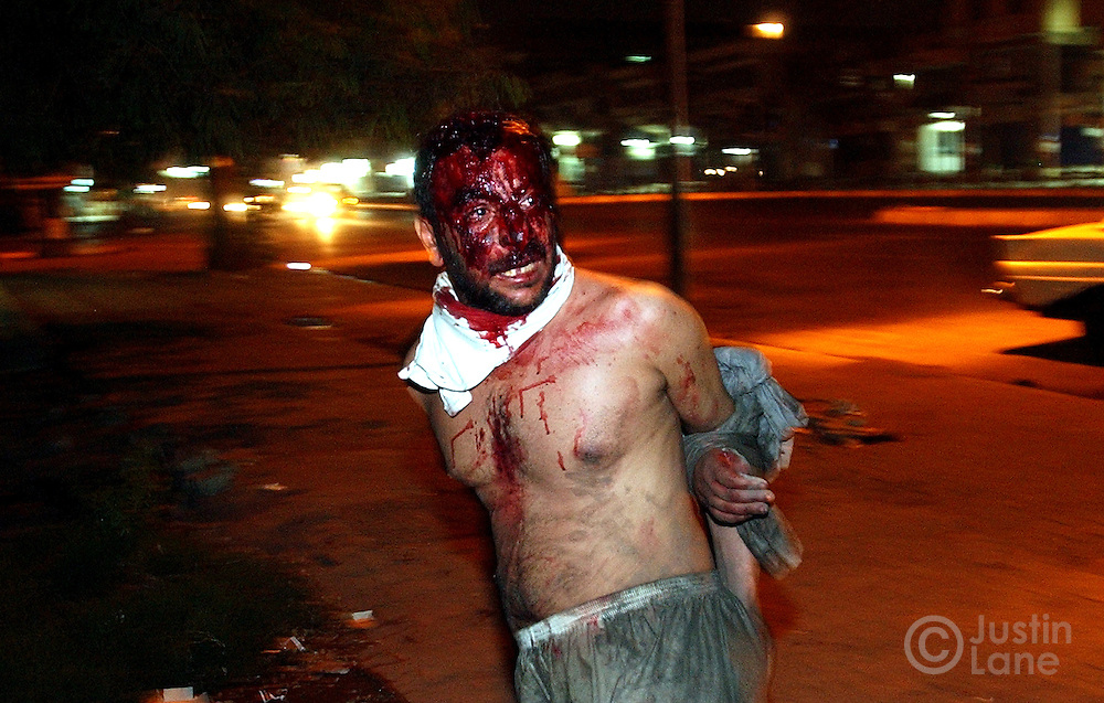 A bloody man is seen on the streets of Baghdad after being beaten by carjackers.