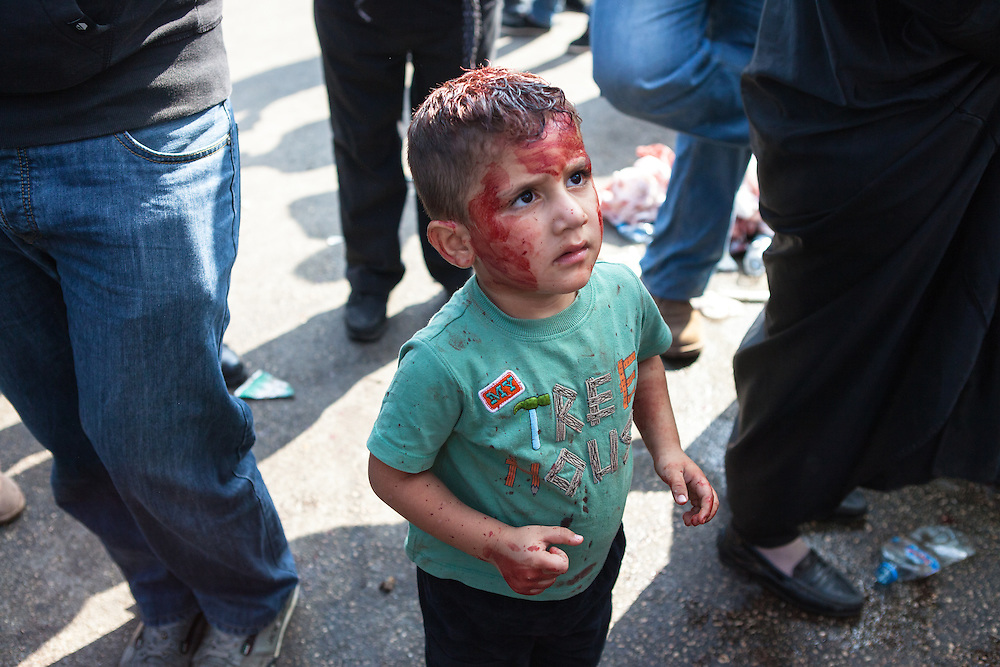 Young shiite muslim boy, his face smeared with blood, looking up at his father, during the Day of Ashura, Nabatieh, Lebanon (November 14, 2013).