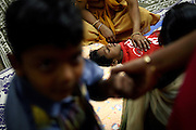 Children are being assisted at the Chingari Trust in Bhopal, Madhya Pradesh, located only minutes away from the former Union Carbide factory. Chingari Trust offers assistance, education, physiotherapy and advice to hundreds of children born from gas-affected parents or being fed highly contaminated water since a very early age, when the body is more likely to be affected and suffer irreparable damage.