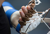 Duke's first hand transplant is performed on May 27, 2016. Led by surgeon Dr. Linda Cendales, two teams worked to attach a donor hand and forearm onto the left arm of Rene Chavez, 54. Chavez, who lives in Laredo, Texas, lost his hand in an accident when he was four-years-old. Here, Chavez, wearing a custom made brace, speaks with his interpreter Joel Pena before a press conference.<br /> <br /> Shawn Rocco/Duke Health