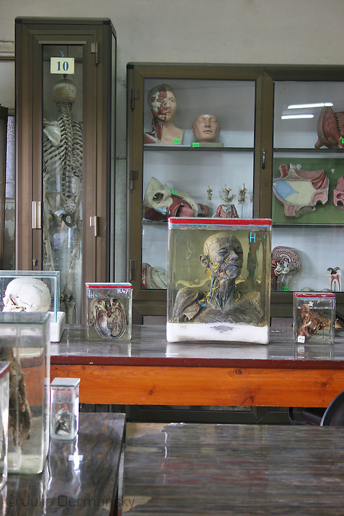 displays at an anatomy museum in a hospital in Cairo used by medical students studying anatomy