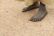 A picture of some feet. A lot of women either walk to their rural health centre, or arrive by bicycle.<br /> <br /> Level 3 health centres are usually smaller facilities, often in more isolated or rural locations. Although staffed by qualified health workers, they are often lacking in basic infrastructure and they do not have the staff or equipment to manage emergency procedures.<br /> <br /> Joseline attended the emergency obstetrics course that RCOG member Dr Helen Allott ran in August 2013.