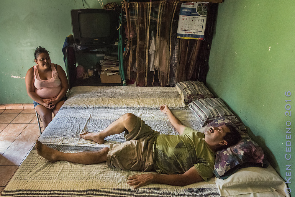 Rony Alexander Ramirez Orellana, 42, lays in bed as his wife Dania Ramirez sits nearby September 29, 2016 in Santa Rosa de Copan, Honduras. Orellana suffers from sever back pain and is currently out of work as an auto electrician. He is supported by his wife as they struggle to make ends meet along with their 9 year old daughter. His boss says he is welcome to return to work after the operation that is scheduled for October. Doctors Roberto Alvarez and J.C. Tabet will perform the donated surgery in connection with Central American Medical Outreach. Photo Ken Cedeno