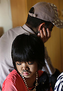 HANGZHOU, CHINA - AUGUST 18: (CHINA OUT) <br /> <br /> Hairy Girl In Hangzhou,china<br /> <br /> 9-year-old Huang Ting is seen on August 18, 2013 in Hangzhou, Zhejiang Province of China. Huang Ting was born with hairy body, and her father is also a hairy man. Huang Ting's mother is the only source of income of the family, as her father has a disinclination to meet people. <br /> ©exclusivepix