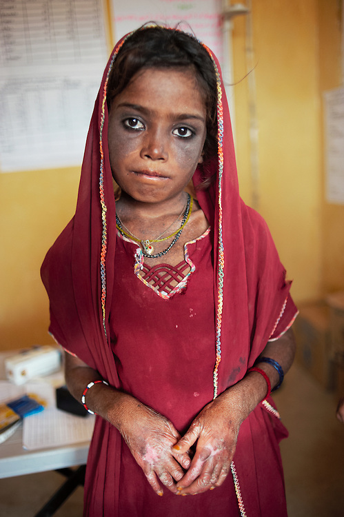 Shazia Buisrio, 9 who has has lupus, a skin condition in the government health clinic in the village of Sheer Ali Shah, Thatta, Sindh, Pakistan on July 1, 2011.