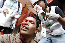 60975721<br /> An injured protester is seen during a demonstration in Phnom Penh, Cambodia, Jan. 27, 2014. Cambodian security forces fired smoke shells to disperse protesters in the capital Monday morning, national military police spokesman Kheng Tito said, Cambodia. Monday 27th January 2014. Picture by  imago / i-Images<br /> UK ONLY