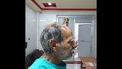"A 75-year-old man suffering from a rare disease has grown a Hellboy-like horn on his head. Shyamal Lal Yadav, hailing from Sagar district of Madhya Pradesh in central India, suffered an injury on his head five years ago. Yadav claims that a horn-like structure started developing in the middle of his head after that. Yadav saw several doctors, but 'all of them looked clueless'. He finally got the horn sliced with the help of a barber. ""I thought to myself finally I had got good riddance from the devil's horn. But my happiness was short-lived,"" said Yadav. As feared, the horn started to grow back on his head and he was completely clueless about his next course of action Fortunately, the growth did not cause any physical discomfort or snowball into a medical issue. But, it had certainly made him a laughing stock. He was embarrassed to roam around in public with the unnatural growth on his head. ""I kept doing the rounds of hospitals, but nothing happened. Then I asked my barber to cut the horn with the shaving blade. He did manage to cut it off, but the horn grew back in some time at the same spot,"" said the 'real-life Hellboy'. According to Yadav, he travelled to Bhopal (around 170km from Sagar) and Nagpur (around 388km from his home) to consult senior experts, however, had to come back as he could not afford the cost of the operation. The medical fraternity was in a tizzy as they hadn't witnessed anything like that. His quest finally ended at a private clinic run by Dr. Vishal Gajbhiye in his home town Sagar. Dr. Gajbhiye said,"" ""The four-inch horn was solid and had sizable thickness."" The physician carried out a CT scan to ensure that the horn wasn't deep enough to require the intervention of a neurosurgeon. The physician went ahead with the head surgery to remove the horn. After the horn was removed, the surgeons used the skin of Yadav's forehead to fill up the gap through plastic surgery. Dr. Gajbhiye calls it a rare case and claimed t"