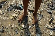 Teen Feet In The Dump