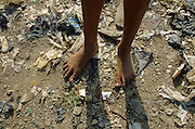 Teen Feet In The Dump