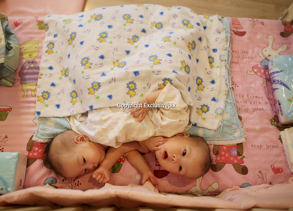BEIJING, CHINA - DECEMBER 05:  China Out - Finland Out<br /> <br /> Conjoined twin baby girls connected at the abdomen abandoned in Chinese orphanage<br /> <br /> Conjoined twin baby girls have been abandoned at an orphanage in China after it is believed their parents could not afford to care for them. <br /> The girls, who are only about three months old, are connected by their abdomens and lie face-to-face. <br /> They are awaiting specialist treatment in Beijing where it is hoped they can be separated.<br /> he girls were handed to the organisation in Pingdingshan City, Henan Province, on August 11 and have since been named Zheng Hanjing and Zheng Hanwei. <br /> However, it is not known exactly how old they are.<br /> <br /> <br /> Hanjing and Hanwei have been transferred to a children's home in Beijing while they await a variety of tests to determine if they share any vital organs.&nbsp;<br /> They are being cared for by Mercy Corps children's home and staff member Deng Zhixin said that from 140 rescued children, this was their first case of conjoined twins. <br /> She told Chinese news site Fawan that she refused to 'judge' the twin's mother for abandoning them.<br /> <br /> <br /> She said it was likely their mother may have been forced to give up her children because of poverty and being unable to afford proper medical care. <br /> Deng said the pair are 'lively' and they are turned by staff every hour as they cannot roll by themselves. <br /> It is hoped the twins could be separated as early as this month but surgeons still need to determine what, if any, organs the babies are connected by.<br /> <br /> Next week the babies will be given a heart examination and abdominal ultrasounds to see if any organs are shared.&nbsp; <br /> About one in every 200,000 live births worldwide result in conjoined twins.<br /> <br /> Around 40 to 60 per cent of conjoined twins arrive stillborn, and about 35 per cent survive only one day and long-term survival is between five and 25 per cent. <br /> The condition is three times more likely to occur among females than males and a third of conjoined twins are attached at the low