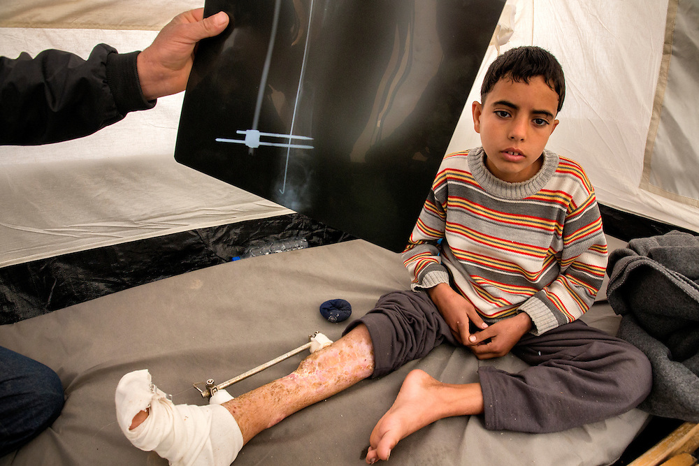 Ibrahim Sirhan had his leg shattered in a bombing in Daraa, Syria. Syrian doctors were able to repair it with steel rods and screws. Jan. 31, 2014. Zaatari Camp, Jordan. (Photo by Gabriel Romero/Alexia Foundation ©2014)