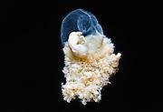 Nederland, Nijmegen, 30-3-2011Anatomisch museum UMC Radboud.Een embryo, 7 weken oud. Het embryo hangt binnen de vliezen aan de navelstreng. Chorionvlokken zijn nog niet in de wand van de baarmoeder opgenomen. Embryo, seven weeks old, inside skins and attached to umbillical cord. Foto: Flip Franssen