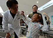 WUHAN, CHINA - NOVEMBER 16: (CHINA OUT) <br /> <br /> 3D-Printed Hand Completed<br /> <br /> A child wears 3D-printed hand at Wuhan Third Hospital on November 16, 2015 in Wuhan, Hubei Province of China. A child, a farmer Liu Tao\'s son, fell into a fiery pit where straws was burning when he was only three years old. Left ear and left hand got injured heavily that the left hand had to be cut. While a phone in May this year from Wuhan Third Hospital gave them hope that the lost left hand could be replaced by 3D-printed hand and luckily it made success on the child finally.<br /> ©Exclusivepix Media